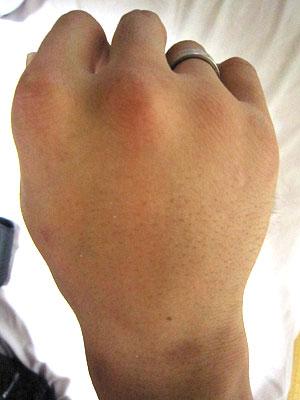 [写真]腫れた手の甲